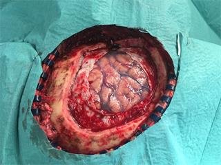 Damaged meninges, after craniotomy